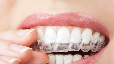 woman putting in clear plastic aligner l bloomington invisalign