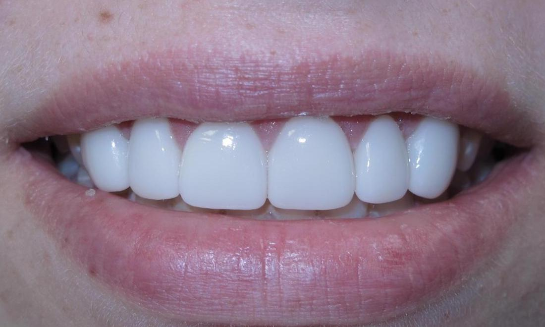beautiful smile after treatment l cosmetic dentistry bloomington in