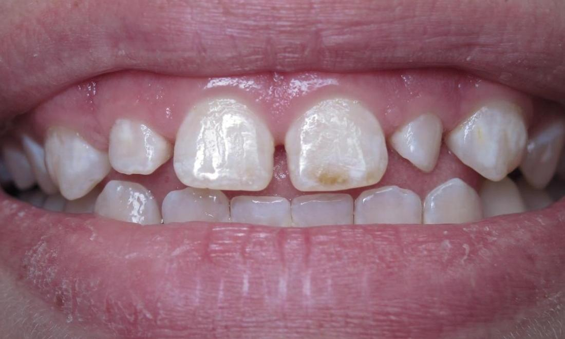 dingy teeth before dental treatment l bloomington indiana dentist
